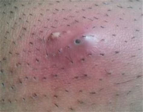 are pimples on the related to herpes picture 11