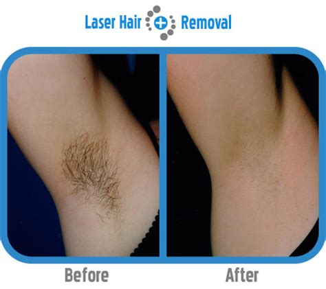 about hair removal picture 3