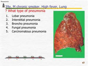 what is the results of elevated pneumonia level picture 5