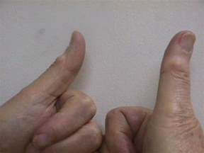 white or red thyme for ganglion cyst picture 9