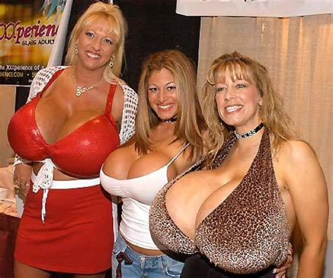 new york breast enlargement picture 11
