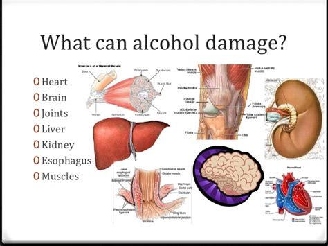 liver failure & death picture 8