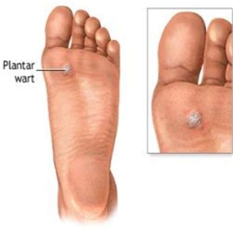 cure for warts picture 9