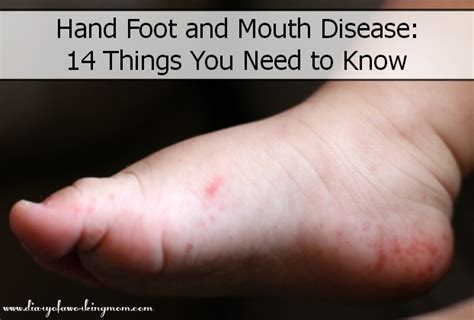 herbss for mouth and foot disease picture 5