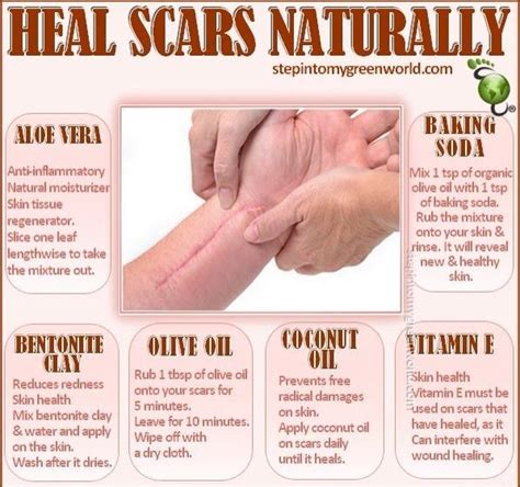 scars herbal healing picture 5