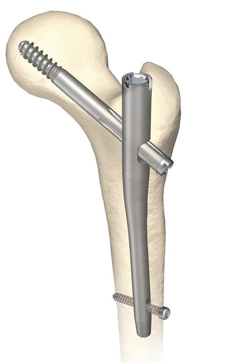 picture knee joint picture 17
