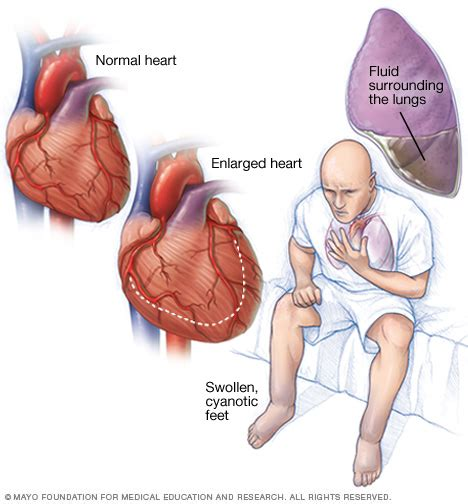 fatigue symptoms muscle picture 11
