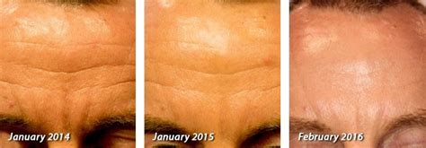 does an skin laser really work picture 1