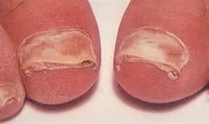 fungi skin disorders picture 15