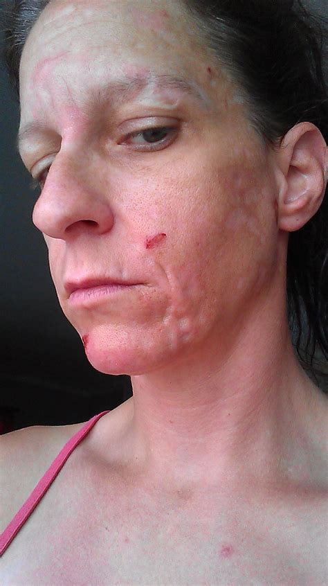 bad infected imbarressing skin picture 6