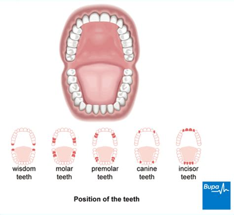 relief from tooth ache picture 9