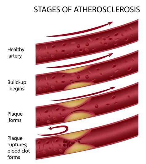 Diabetes and high cholesterol picture 3