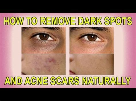 ano herbal ang pampatanggal ng acne scars picture 4
