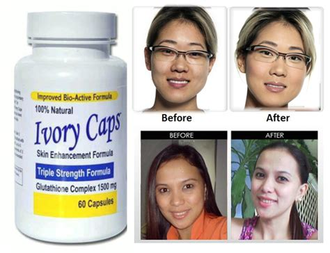 does snow caps glutathione work on skin picture 5
