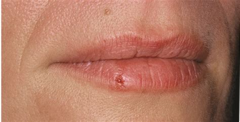 what does genital herpes look like on the picture 13