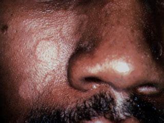 clotrimazole on lips picture 7