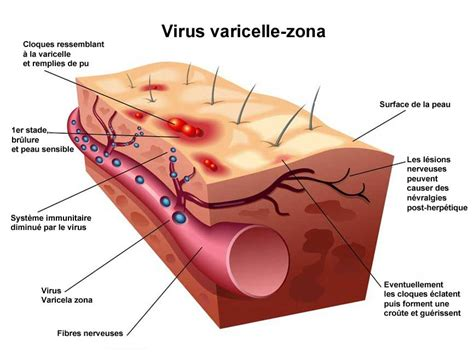 herpes 2 virus picture 7