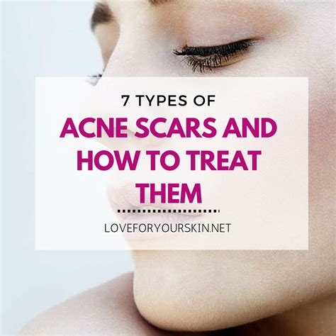 how to treat acne picture 14