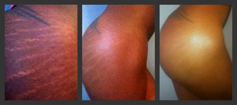 chemical ling does not remove stretch marks picture 1