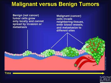 benign tumors of the liver in s picture 2