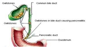 gall bladder bile leak picture 9