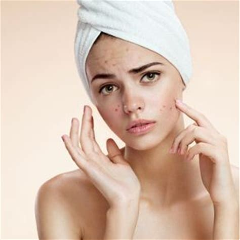 co2 laser treatment for acne scars picture 14