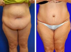 loose skin after weight loss picture 1