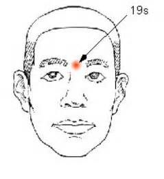 acupuncture thyroid gland picture 1