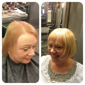 hair loss vinegar picture 5