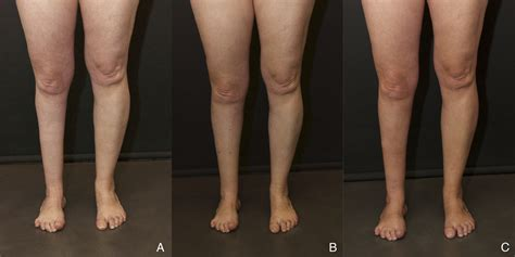 fat transfer to legs picture 14