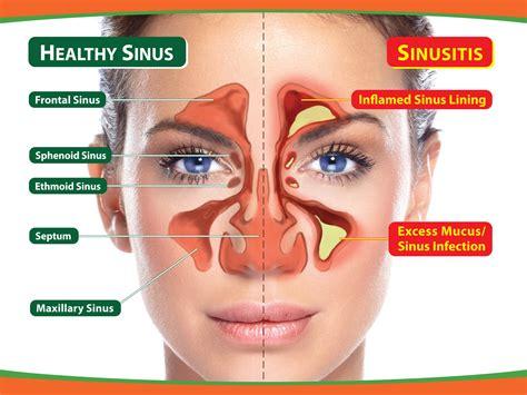fistula pain relief picture 11