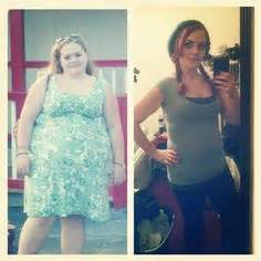 will gastric byp work if i'm weight loss picture 7