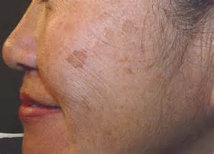 darkening of the skin picture 1