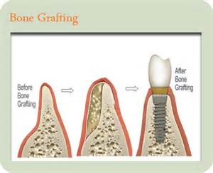 gum grafting picture 7