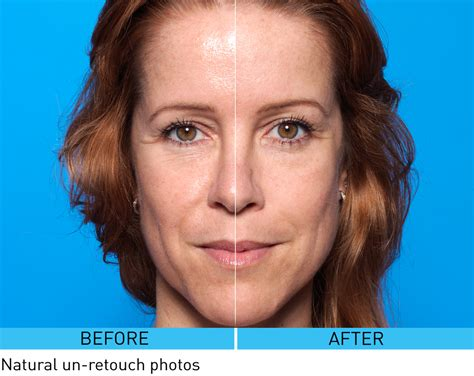 anti aging over 50 picture 9