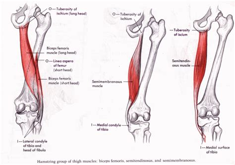 acute muscle tear picture 18