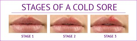 although, cold sores is one of the symptoms picture 3