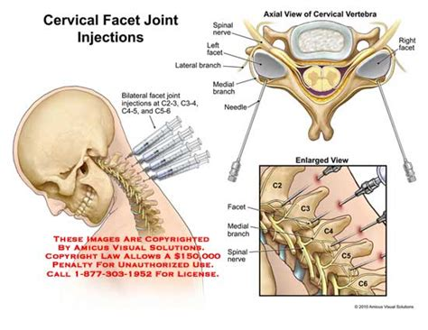 facet joint displacement and corrective surgery picture 2