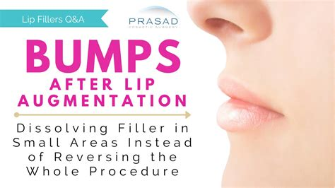 stop swelling from lip injections picture 5