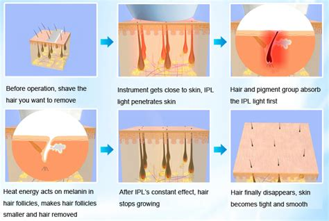 is it safe to use chemical hair removers picture 1