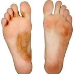 toenail fungus homemade remedy picture 5