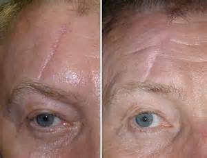 acne scar removal surgery picture 5