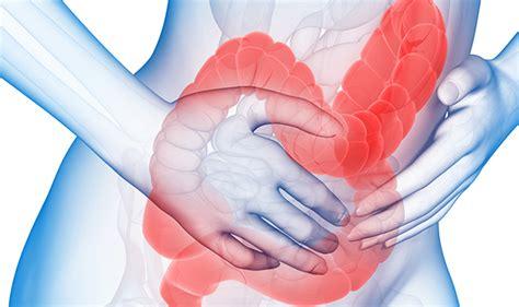 irritable colon picture 6