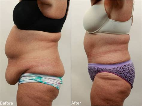 how to loose excess weight on waist,tummy and picture 1