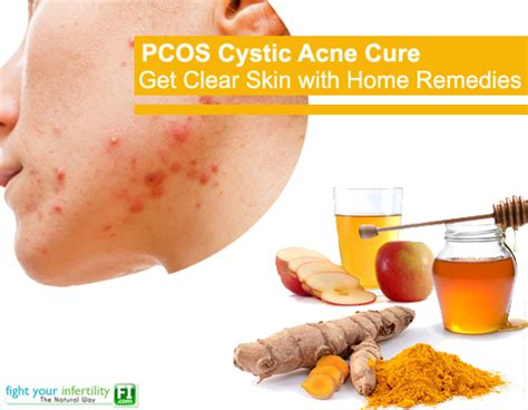 do ovarian cysts cause cystic acne picture 4