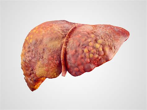 symptoms liver cancer picture 7