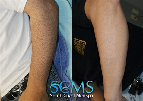 forearm hair removal picture 3