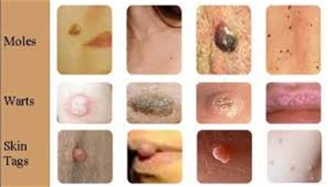 skin tag removal vaginal area picture 17