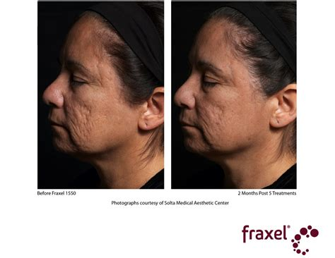 pictures of fraxel laser before and after for picture 5