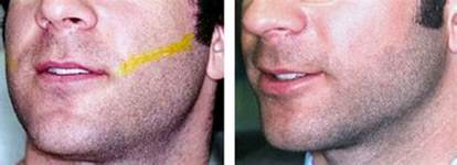 new york city male laser hair removal surgery picture 3
